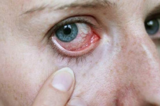 Doença de olho seco e diabetes: estudo revela necessidade de triagem