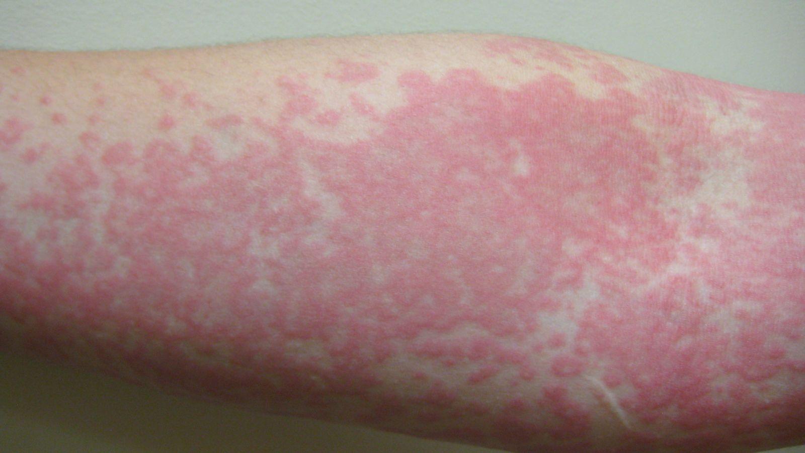 Erupção na pele pode ser mais um sinal de Coronavírus